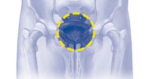 XXXII Reunión Nacional del Grupo de Urología Oncológica